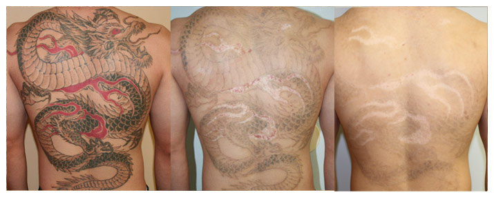 Laser Tattoo Removal San Diego Tattoo Removal Los Ideas And Designs