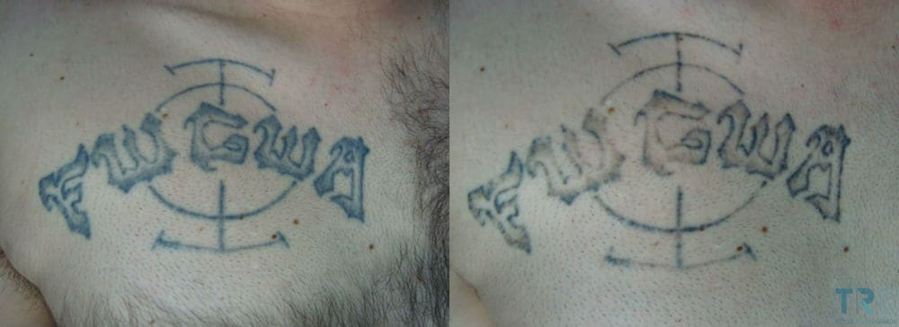 Laser Tattoo Removal Aftercare How To Care For Skin After Ideas And Designs