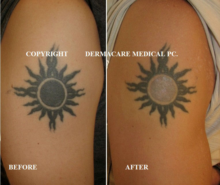 Laser Tattoo Removal New York Ideas And Designs
