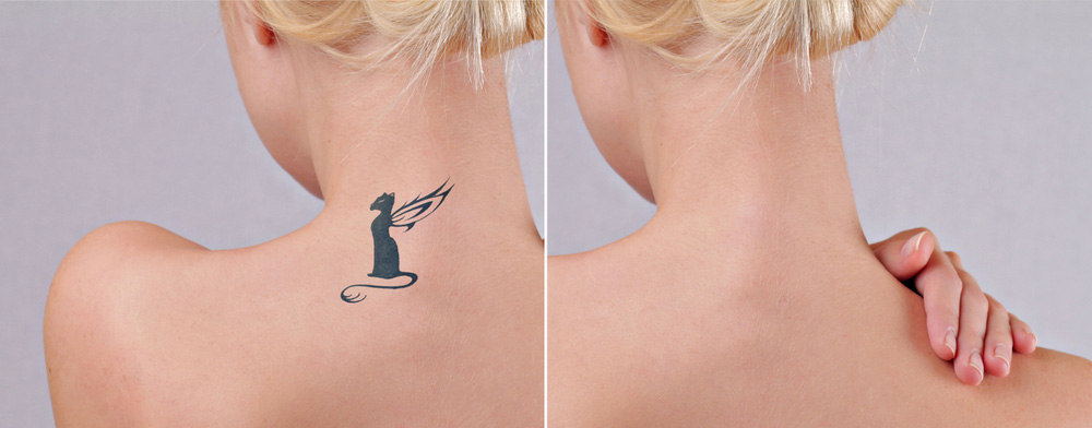 Laser Tattoo Removal Adelaide Body Ink Removal 100 Safe Ideas And Designs