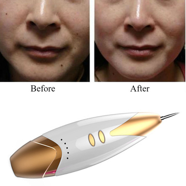 New Laser Freckle Removal Machine Skin Mole Removal Dark Ideas And Designs