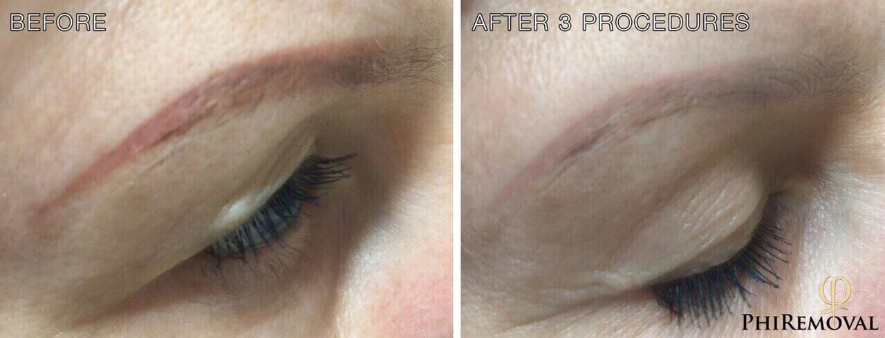 Tattoo Removal And Permanent Makeup Removal B Lashes Ideas And Designs