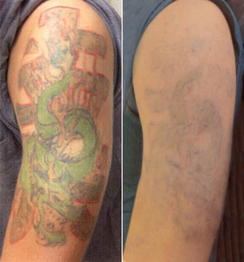 Laser Tattoo Removal Contour Dermatology Ideas And Designs
