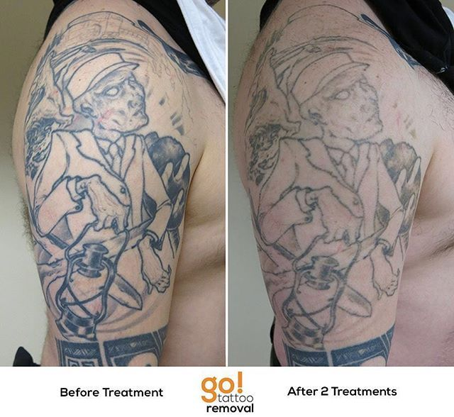 927 Best Tattoo Removal In Progress Images On Pinterest Ideas And Designs