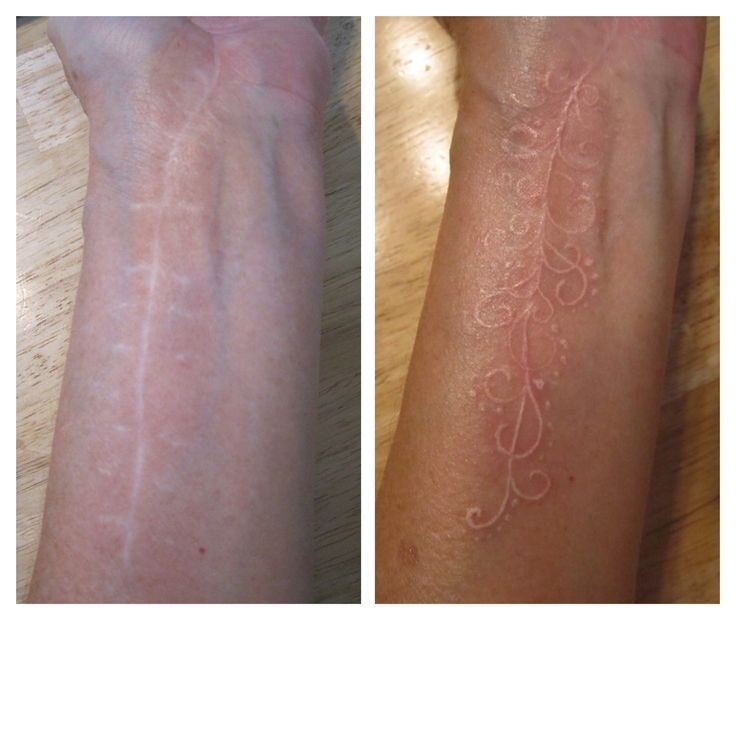 White Tattoo Over Surgery Scar Tattoos Scar Tattoo Ideas And Designs