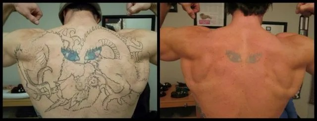 Tattoo Removal Before And After Photos From Rethink The Ideas And Designs