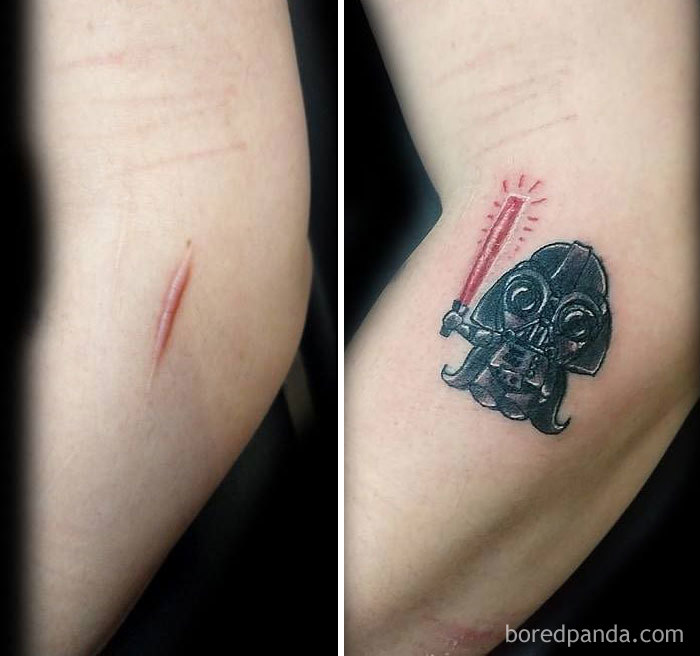 25 Times People Asked To Cover Up Their Scars And Ideas And Designs
