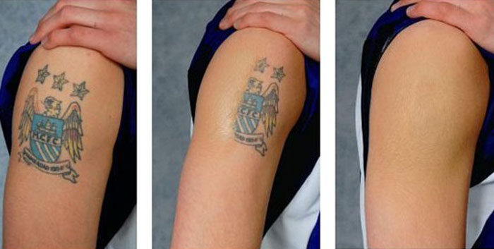 Home Tattoo Removal – Natural Methods Of Tattoo Removal Ideas And Designs