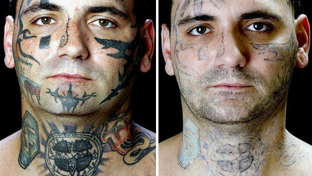 Fda Tattoo Removal No Simple Process Cbs News Ideas And Designs