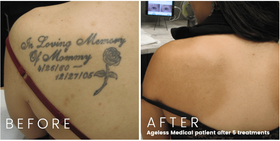 Tattoo Removal Fort Lauderdale Before And After Ideas And Designs