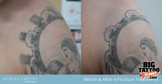 Andrea Catton Laser Clinic Laser Tattoo Removal Tattoo Ideas And Designs