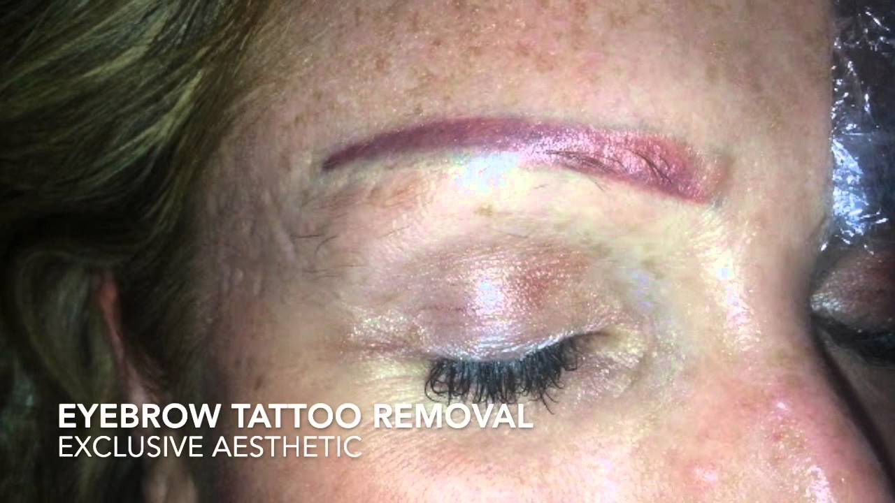 Eyebrow Tattoo Removal By Exclusive Aesthetic Youtube Ideas And Designs