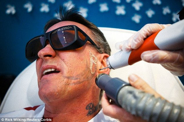 Pain Free Tattoo Removal Cream Could Fade Away Ink Ideas And Designs