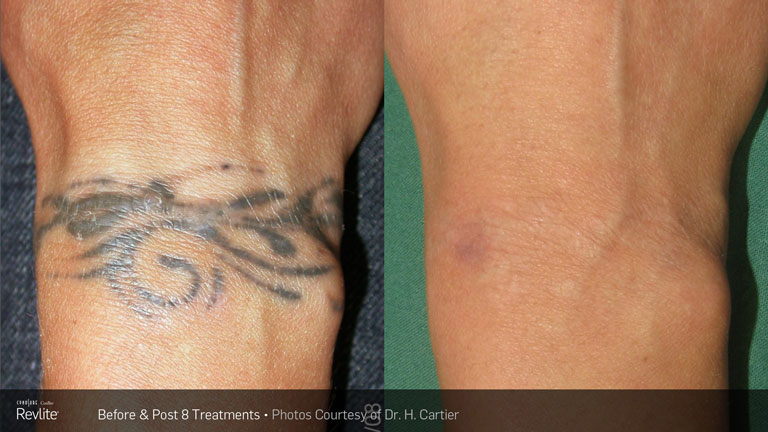 Tattoo Removal Luxe Laser Center Ideas And Designs