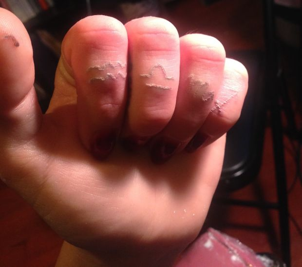 Tattoo Scarring – What Causes Tattoo Scars What To Do Ideas And Designs