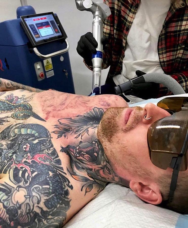 Laser Tattoo Removal – Everything You Need To Know Ideas And Designs