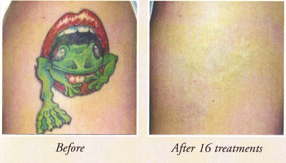 Affordable Tattoo Removal Using Infrared Light Ideas And Designs