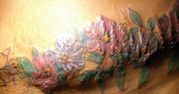 Tattoo Over Scars Post Navigation Tattoos Pinterest Ideas And Designs