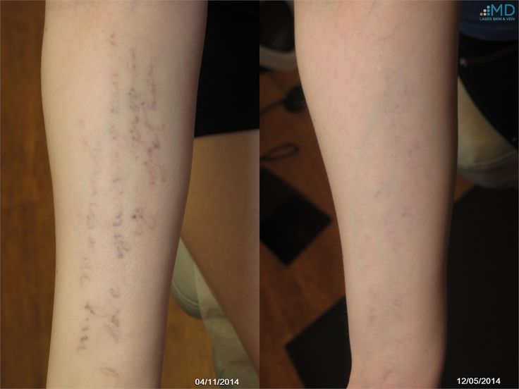 72 Best Images About Laser Treatments On Pinterest Laser Ideas And Designs