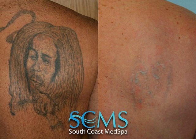 1633 Best Images About Tattoo Removal On Pinterest Ideas And Designs