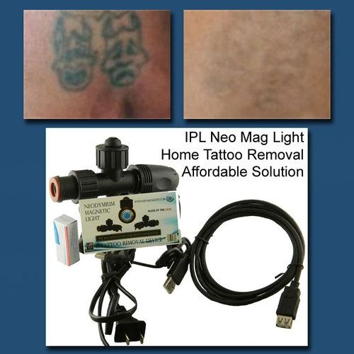 17 Best Images About Home Tattoo Removal On Pinterest Ideas And Designs