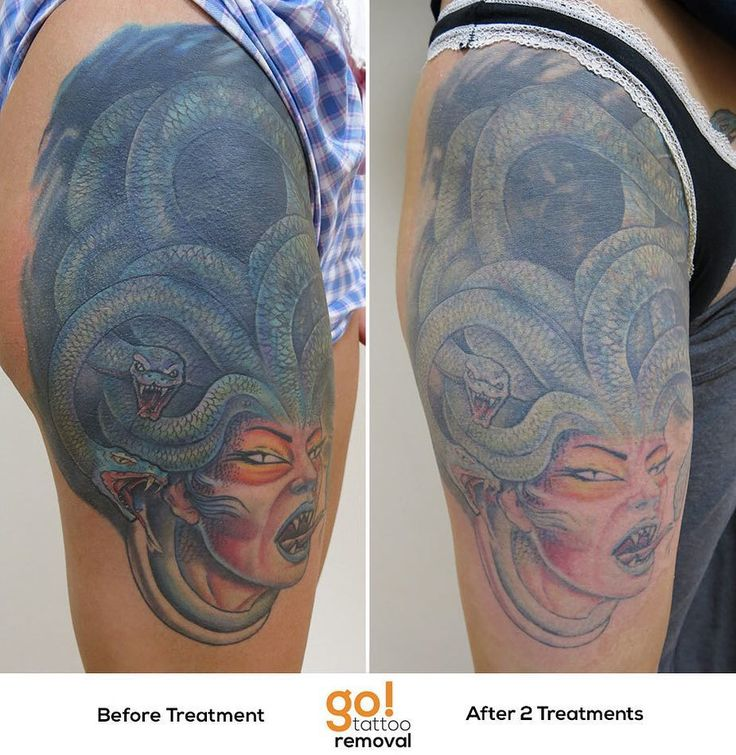 679 Best Images About Tattoo Removal In Progress On Ideas And Designs