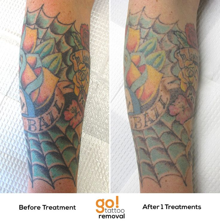After 1 Laser Tattoo Removal Treatment We Re Seeing Great Ideas And Designs
