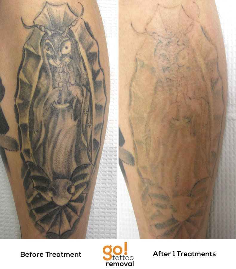 Simply Amazing Results After 1 Laser Tattoo Removal Ideas And Designs