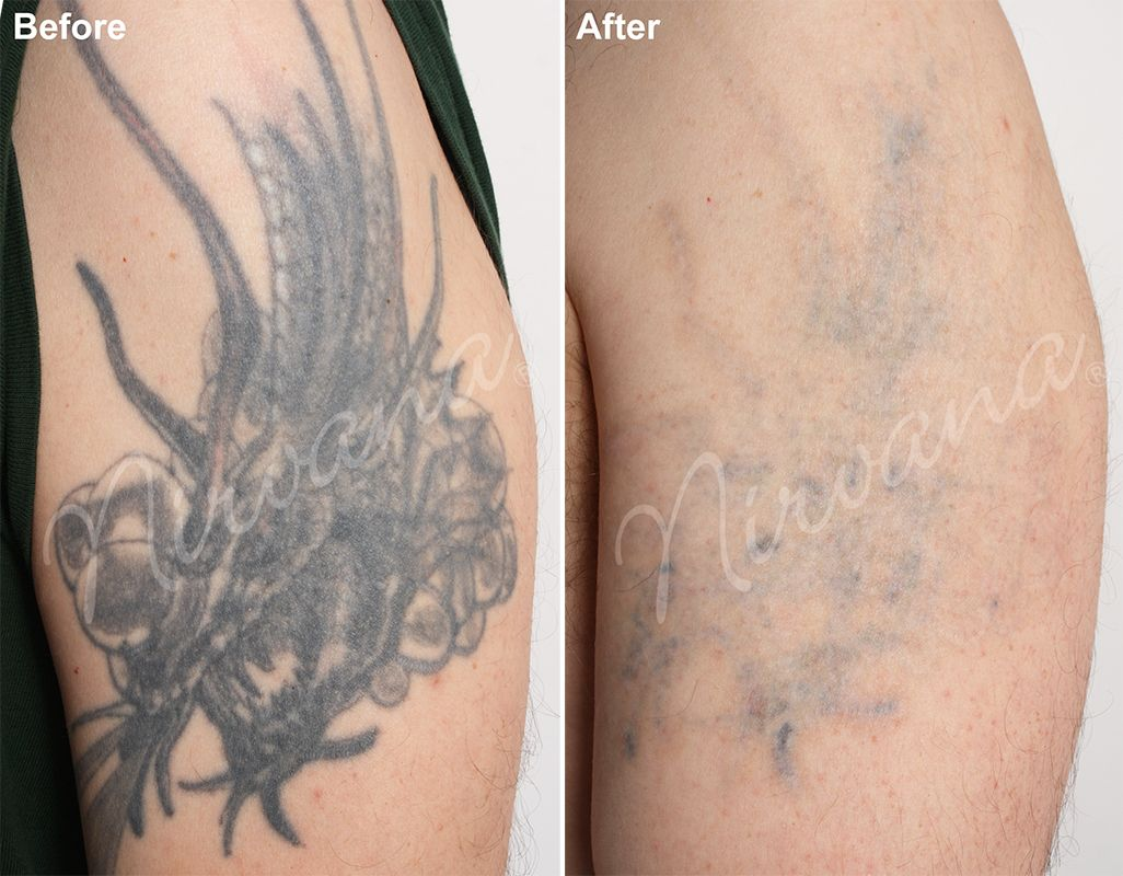 100 Is Tca For Tattoo Removal Treatments The Ideas And Designs