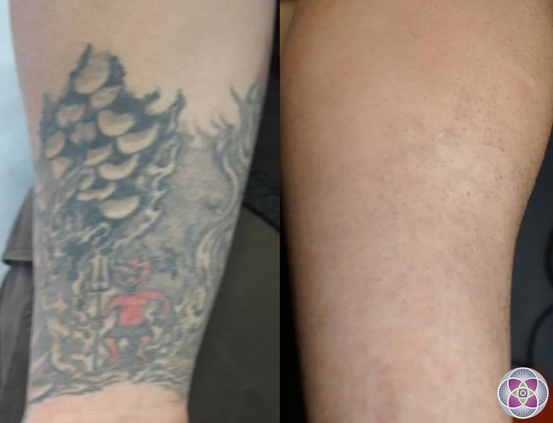 Laser Tattoo Removal How A Tattoo Is Removed Ideas And Designs