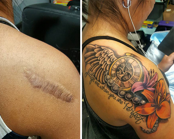 10 Amazing Scar Cover Up Tattoos Part 7 Ideas And Designs
