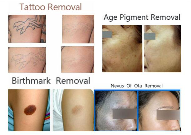 Medical Q Switched Nd Yag Laser Tattoo Removal Machine Ideas And Designs