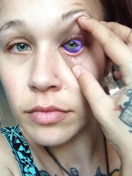 Sclera Tattoo Don T Ink Your Eyeball Just Don T Do It Ideas And Designs