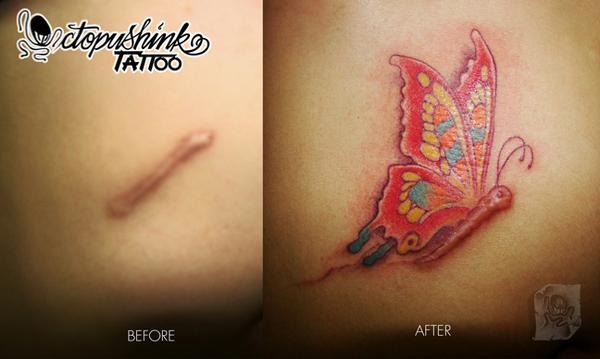 Ocultar las Cicatrices con Tatuajes
