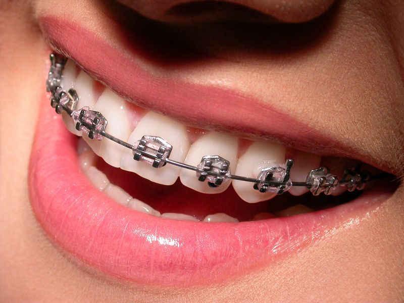 Металлические брекеты в стоматологии