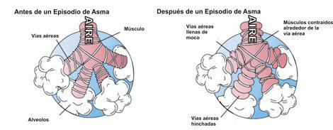 asma, diagrama
