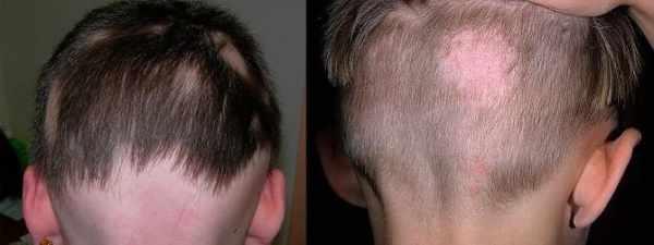 Лишай на голове у человека: симптомы и лечение (фото)