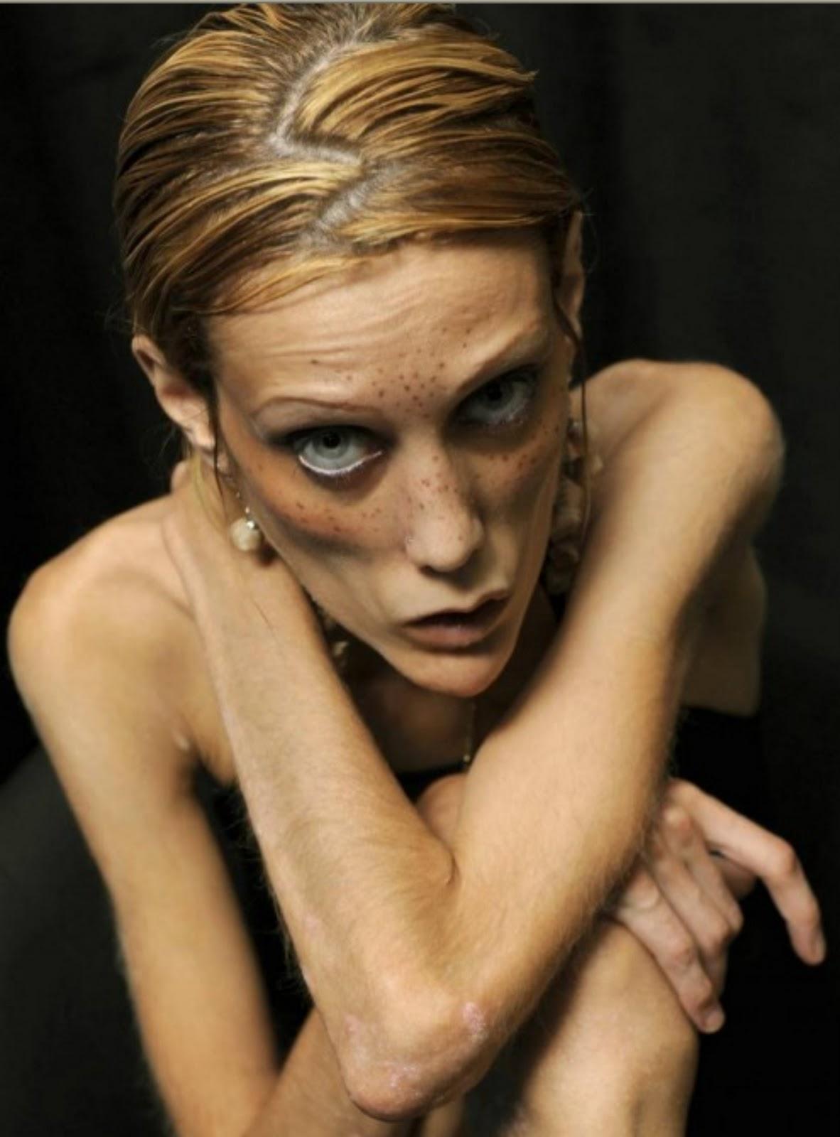 Anoreksi-forkæmper sultede sig ihjel - Ekstra Bladet