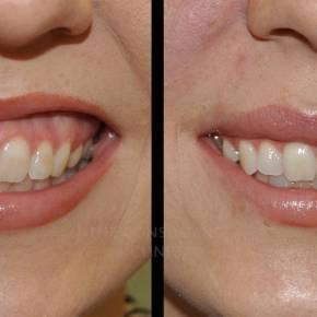 Botox per il trattamento  del sorriso gengivale