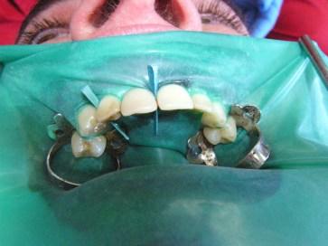 Diga dentale