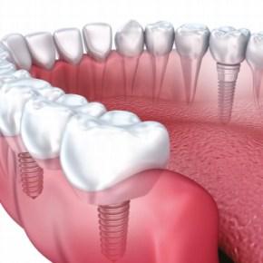 Analisi di 1036 impianti Bone System a 20-29 anni
