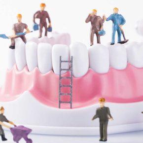 Curiamo denti e parodonto o estraiamo e facciamo impianti?