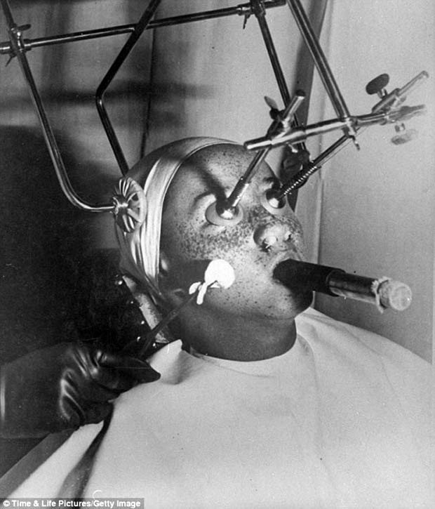 vintage medical devices, frekle removal ~ old creepy photos