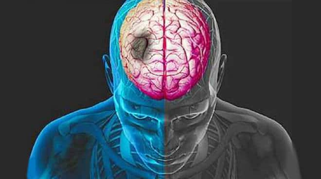 Neuroprosthesis