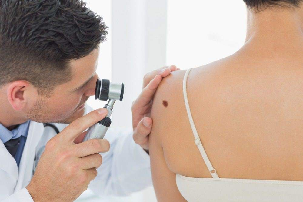 Acral melanoma