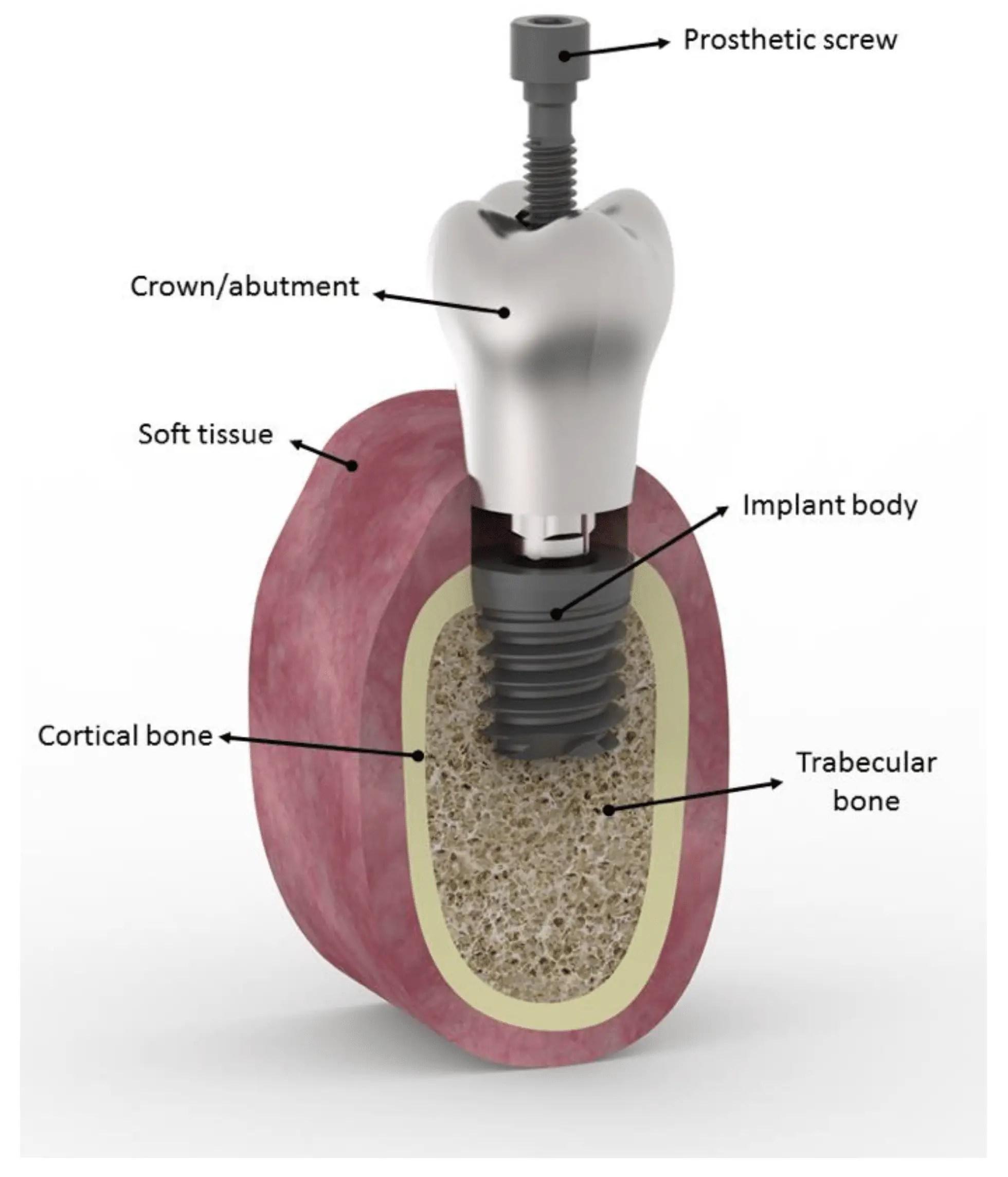 Smart dental implant