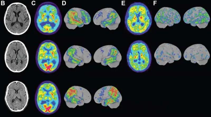 Rare form of Alzheimer's