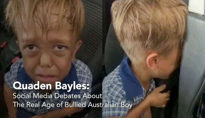 Quaden Bayles: Social Media Debates About The Real Age of Bullied Australian Boy, bullying australia kid, bullying australian boy, bullying no way, bullying statistics, bullying facts,