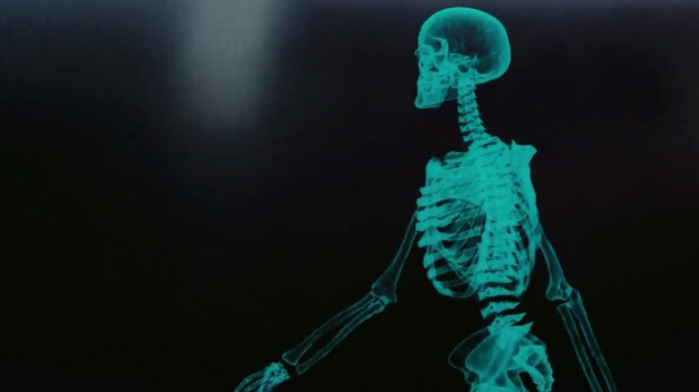 the-x-ray-1507813096