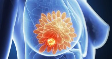 IBM New AI Predict Breast Cancer A Year Before It Appears techgrabyte
